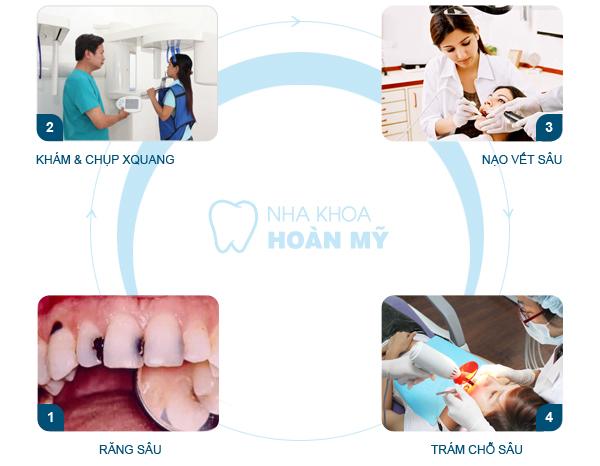 Hàn răng sâu có đau không?