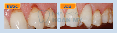 Làm gì khi bị viêm chân răng nhẹ?