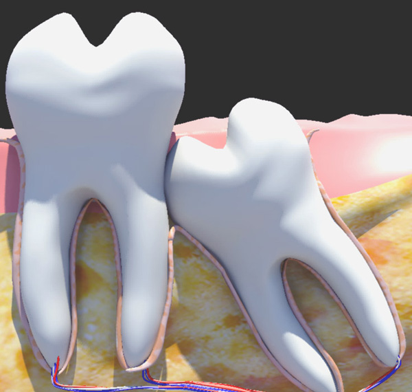 Có nên nhổ răng khôn không?