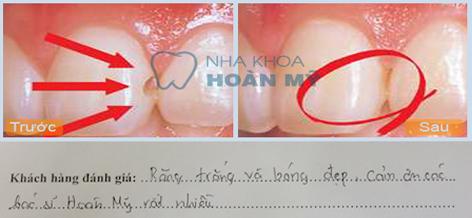 Điều trị bệnh lý răng miệng 8