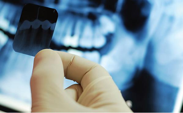 Chi phí nhổ răng khôn tại nha khoa Hoàn Mỹ