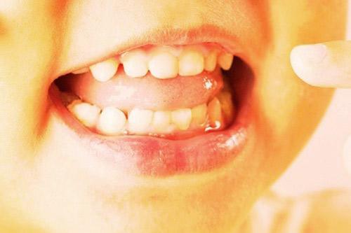 Răng sữa mọc thưa có ảnh hưởng đến răng vĩnh viễn?