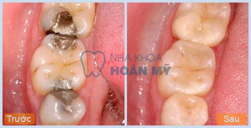 5 cách làm hết sâu răng với bài thuốc dân gian 3