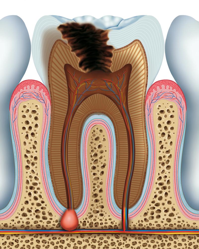 Dấu hiệu cảnh báo bệnh viêm chóp chân răng
