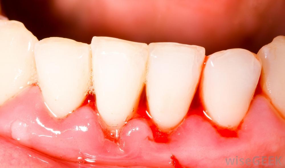 6 bí quyết chữa viêm lợi chân răng tự nhiên 1
