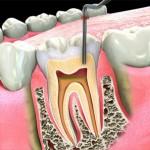 Viêm chân răng có nguy hiểm hay không?