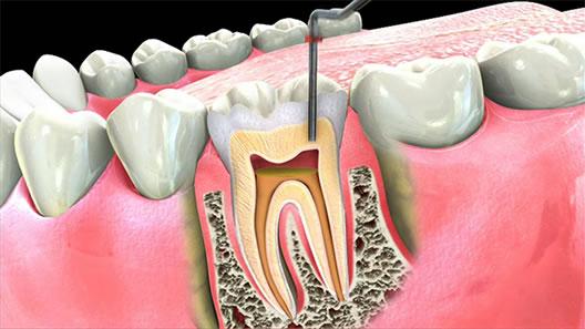 Nguy hại khôn lường trước dấu hiệu viêm chân răng có mủ