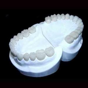 Những nguyên nhân gây răng vẩu chủ yếu
