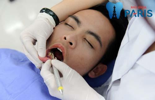 Top 4 bài thuốc nam trị viêm chân răng hiệu quả 1
