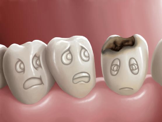 Địa chỉ nào khám răng sâu ở Hà Nội hiệu quả?