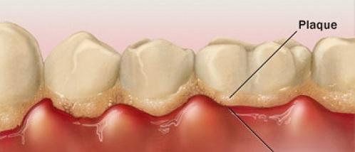 Tìm hiểu rõ cấy ghép implant là gì?