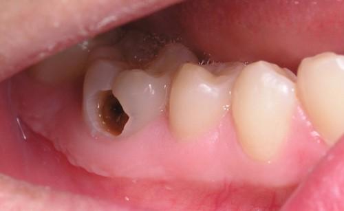 Cách nào chữa sâu răng hiệu quả nhất?