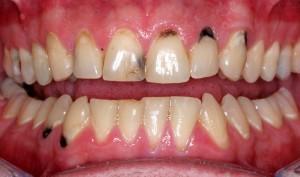 Có nên nhổ răng cửa bị sâu hay không?