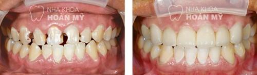 Mão răng là gì cầu răng là gì?