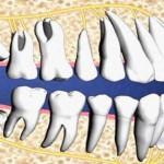 Có nên nhổ răng số 8 bị mọc lệch không?