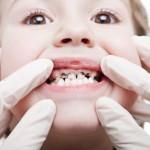 Có nên hàn răng cho bé 3 tuổi hay không?