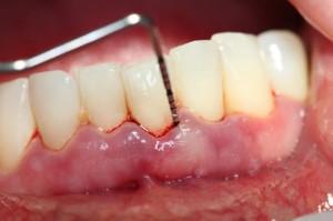 Đánh răng bị chảy máu chân răng có nguy hiểm không?