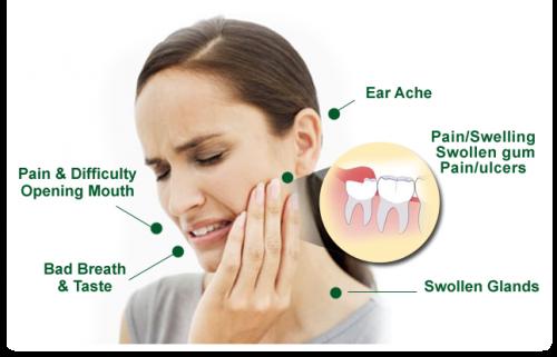 Nên làm gì sau khi nhổ răng khôn?