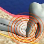 Nhổ răng khôn mọc lệch 90 độ có đảm bảo an toàn hay không?