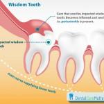 Nhổ răng số 8 hàm dưới có đau không?