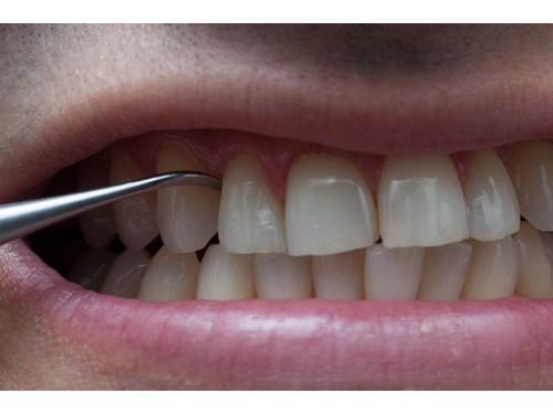Tác dụng của cạo vôi răng đối với sức khỏe răng miệng