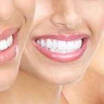 5 bí quyết làm răng vàng trắng sáng trở lại