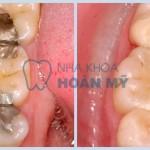 Giá hàn răng sâu tại Nha khoa Hoàn Mỹ là bao nhiêu?