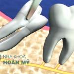 Khi nào nên nhổ răng số 8?