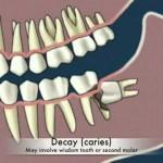 Nhổ răng khôn bị sâu hết bao nhiêu tiền?