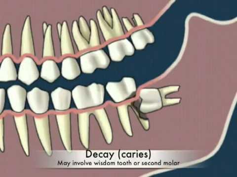 Răng khôn hàm trên bị sâu, chữa thế nào? 2