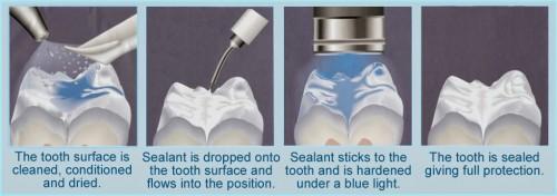 Quy trình chữa răng sâu theo chuẩn Hoa Kỳ