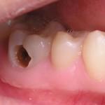 Sâu răng không nhổ có sao không?