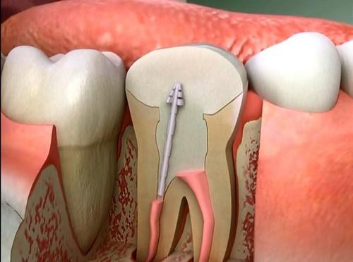 Răng sau khi lấy tủy có cần trám không?