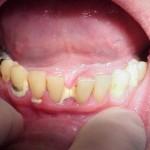 Sâu răng khi đang mang thai có nên nhổ hay không?