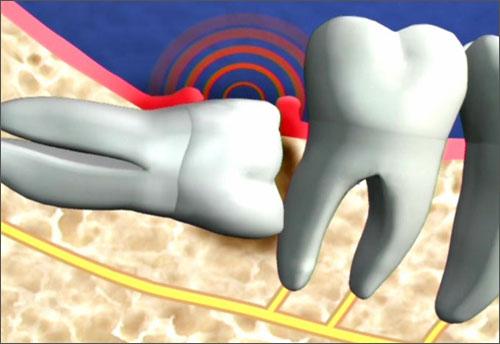 4 cách giảm đau khi mọc răng khôn bạn nên biết