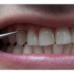 Bảng giá lấy cao răng tại Nha khoa Hoàn Mỹ