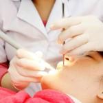 Bao lâu lấy cao răng 1 lần là hợp lý?