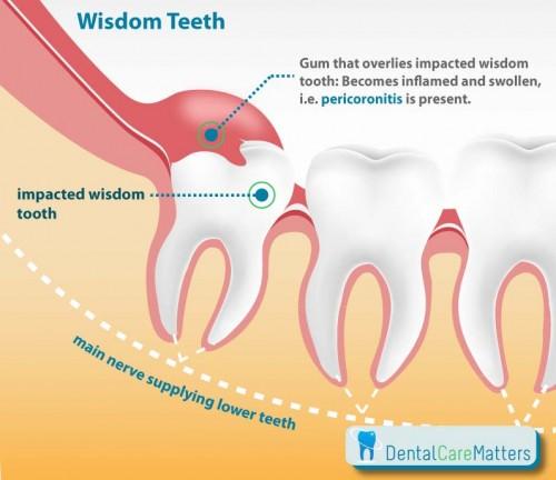 Cách xử lý khi mọc răng khôn bạn nên biết