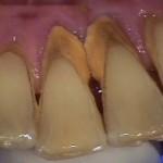 Cạo vôi răng có tác dụng gì đối với sức khỏe răng miệng?