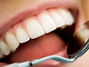 Cạo vôi răng thường xuyên quá có tốt hay không?