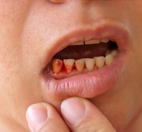 Cách điều trị bệnh chảy máu chân răng hiệu quả nhất1