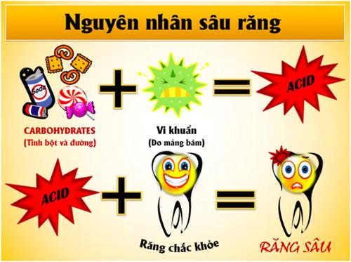 Chữa răng sâu ở đâu tốt nhất tại Hà Nội?