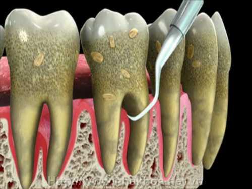 Gợi ý một số cách điều trị viêm chân răng hiệu quả nhất 3