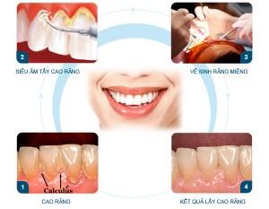 Khi cạo vôi răng có gây đau nhức răng miệng không?