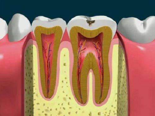 Khi nào cần lấy tủy răng để bảo tồn răng thật?