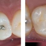 Khi trám răng có cần lấy tủy không?
