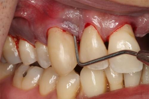 Một số biểu hiện của viêm chân răng bạn nên biết