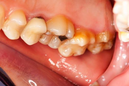 Một số mẹo tự lấy cao răng ở nhà rất đơn giản