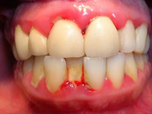 Những tác hại của viêm chân răng có thể bạn chưa biết 2