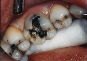 Nhổ răng hàm dưới có nguy hiểm không thưa bác sĩ?